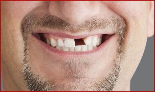 Kỹ thuật cấy ghép răng mới nhất hiện nay 10
