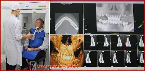 Kỹ thuật cấy ghép răng mới nhất hiện nay 18