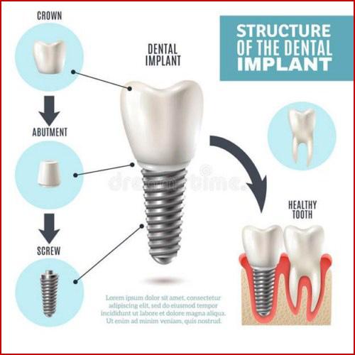 Kỹ thuật cấy ghép răng mới nhất hiện nay 1