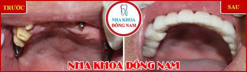 Kỹ thuật cấy ghép răng mới nhất hiện nay 21
