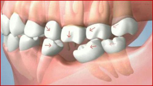 Kỹ thuật cấy ghép răng mới nhất hiện nay 4