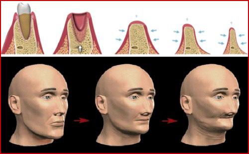 Kỹ thuật cấy ghép răng mới nhất hiện nay 5