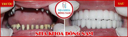 Kỹ thuật cấy ghép răng mới nhất hiện nay 8