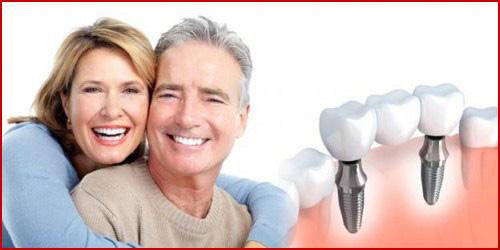 Kỹ thuật cấy ghép răng mới nhất hiện nay 9