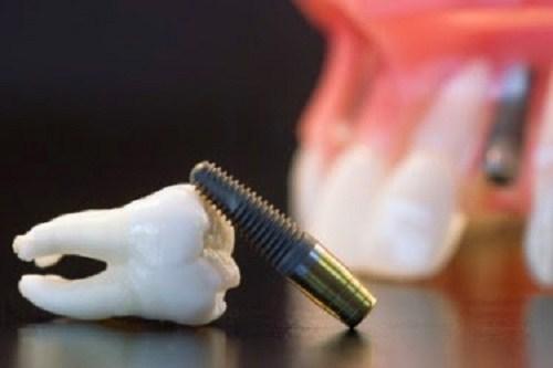 Những Điều cần biết về dịch vụ cấy ghép Implant 10