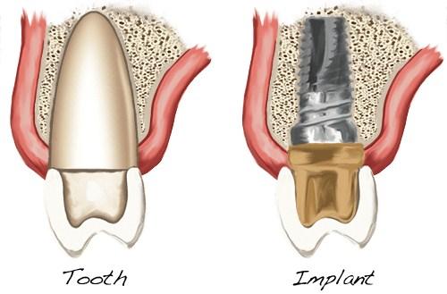 Những Điều cần biết về dịch vụ cấy ghép Implant 11