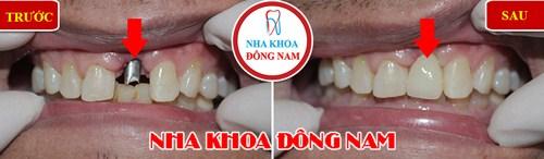 trường hợp cấy ghép răng Implant tại nha khoa Đông Nam 1