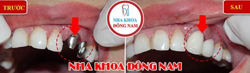 trường hợp cấy ghép răng Implant tại nha khoa Đông Nam 2