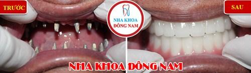trường hợp cấy ghép răng Implant tại nha khoa Đông Nam 4