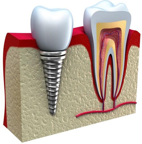cấy ghép implant cho trường họp mấ răng