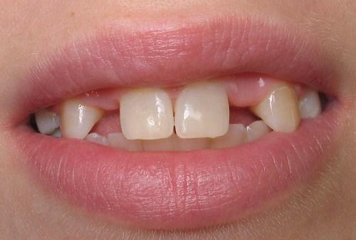 cấy ghép implant cho trường hợp mất răng 1
