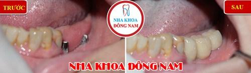 cấy ghép implant cho trường hợp mất răng 2