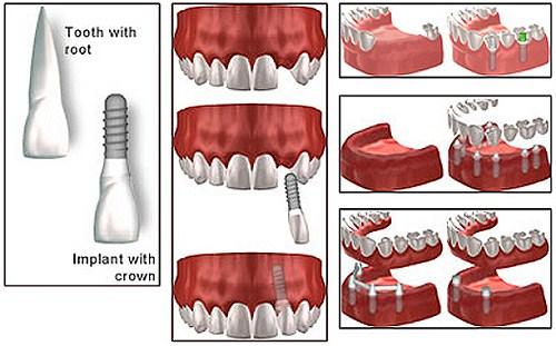 các trường hợp cấy ghép implant 1