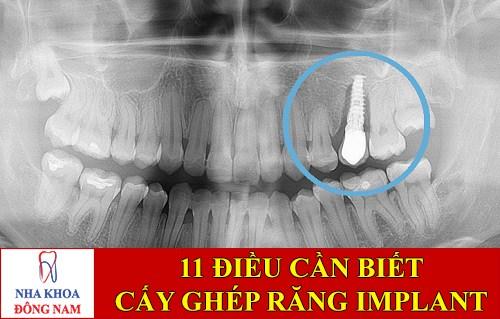 Những Điều cần biết về dịch vụ cấy ghép Implant