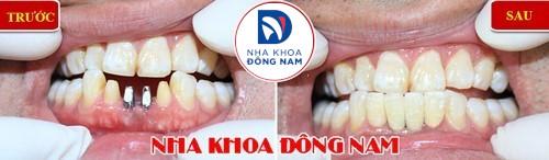 bị mất răng cửa hàm dưới thì làm lại bằng cách nào 3