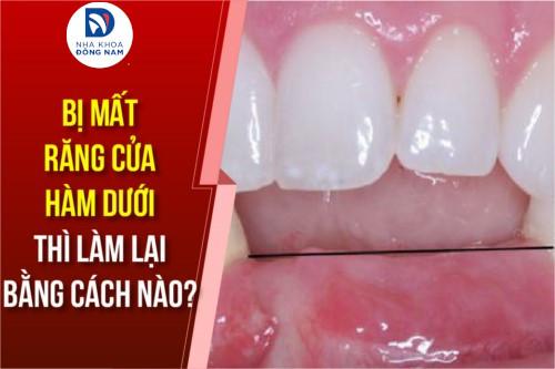 bị mất răng cửa hàm dưới thì làm lại bằng cách nào