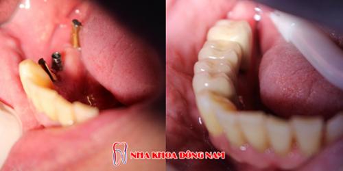 bị mất răng cửa hàm dưới thì làm lại bằng cách nào -4