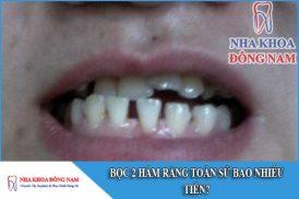bọc 2 hàm răng toàn sứ bao nhiêu tiền