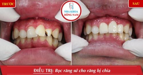 Bọc răng sứ điều trị răng bị chìa
