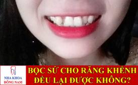 bọc răng sứ cho răng khểnh đều được không -1