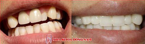bọc răng sứ cho răng khểnh đều được không 1