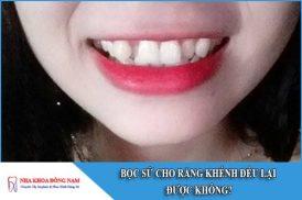 bọc răng sứ cho răng khểnh đều được không