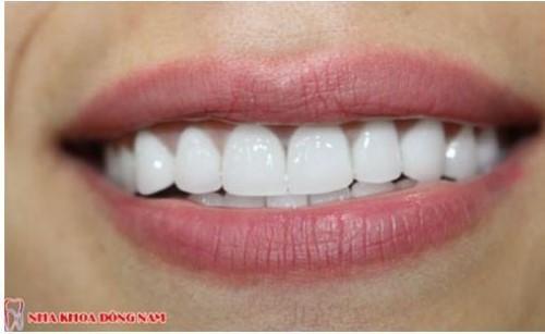 bọc răng sứ cho răng khểnh đều được không 3