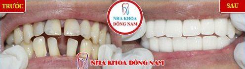 bọc 2 hàm răng sứ cho răng thưa
