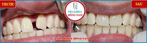 bọc 2 hàm răng sứ cho răng thưa1