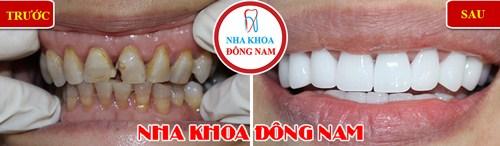 Bọc 2 hàm răng sứ cho răng hư tổn