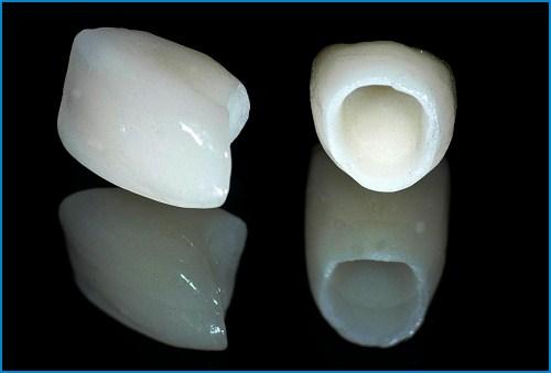 răng toàn sứ - Bọc răng sứ cho răng thưa có giữ được lâu không