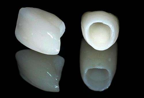 bọc răng sứ cho răng thưa có giữ được lâu không -6