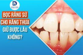 bọc răng sứ cho răng thưa có giữ được lâu không?
