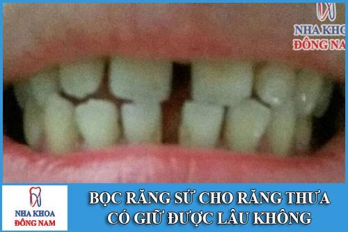 Bọc răng sứ cho răng thưa có giữ được lâu không