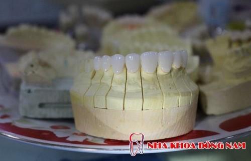 bọc răng sứ có bị ê buốt khi ăn nhai không 6