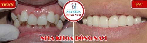Trường hợp bọc 8 răng sứ cho răng cửa hàm trên mọc lệch lạc