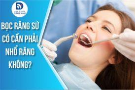 bọc răng sứ có cần phải nhổ răng không