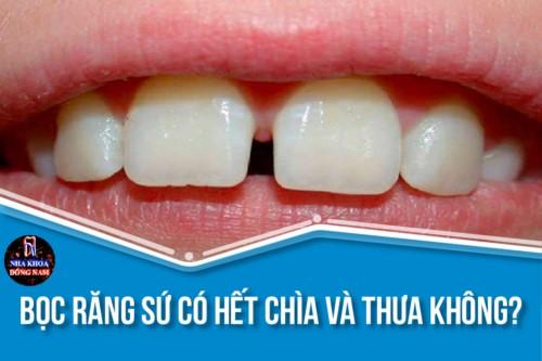 Bọc Răng Sứ có hết chìa và thưa không? Có đau không?