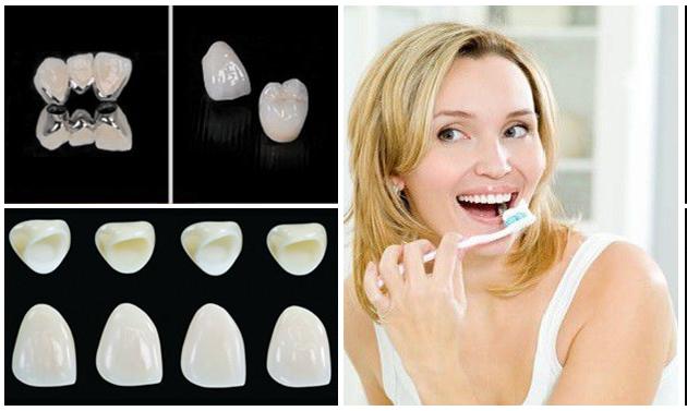 Các loại răng sứ và chế độ chăm sóc răng miệng