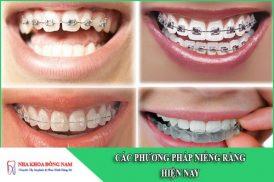 các phương pháp niềng răng hiện nay
