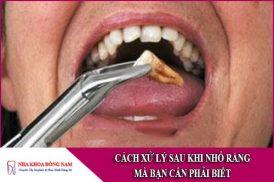 cách xử lý sau khi nhổ răng mà bạn cần phải biết