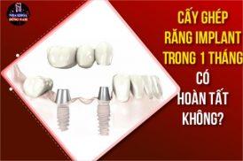 Cấy Ghép Răng Implant Trong 1 Tháng Có Hoàn Tất Không