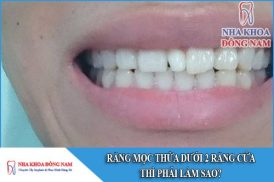 răng mọc thừa giữa 2 răng cửa thì phải làm sao
