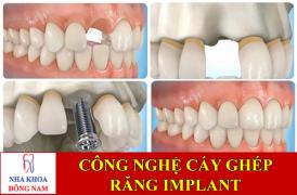 công nghệ cấy ghép răng implant -1