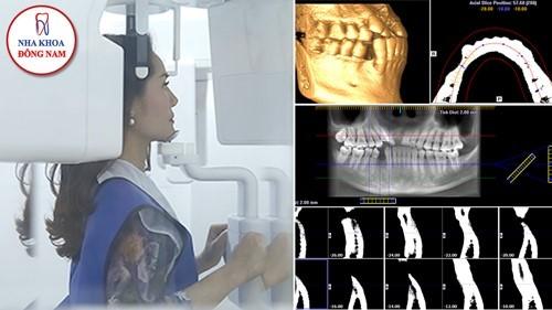 chụp phim CT 3D