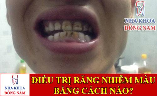 điều trị răng bị nhiễm màu từ nhỏ bằng cách nào -1