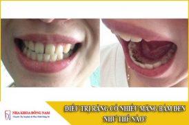 điều trị răng có nhiều mãng bám đen như thế nào
