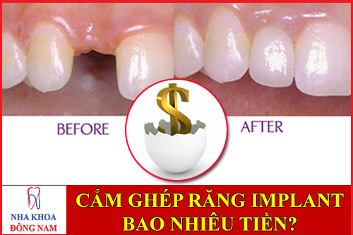 giá cắm ghép răng implant bao nhiêu tiền -1