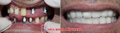giá cắm ghép răng implant bao nhiêu tiền -13