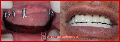 giá cắm ghép răng implant bao nhiêu tiền -14